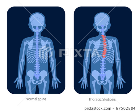 Spine X ray 67502884