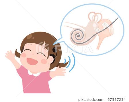耳蜗电极和一个戴着耳蜗植入物的女孩 67537234