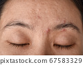 Facial skin problem, Aging problem in adult, wrinkle, acne scar, large pore and dark spot 67583329