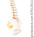 Lumbar spine and sacrococcygeal on a white background, isolate. Intervertebral hernia of the spine, rupture of the fibrous ring, neurological 67612611
