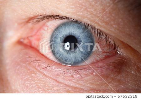 Irritated left blue male eye full with red capillar net 67652519