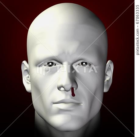 bleeding nose 67863335