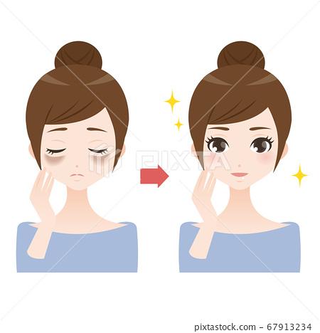 患有黃褐斑和暗沉皮膚的女人的比較插圖 67913234