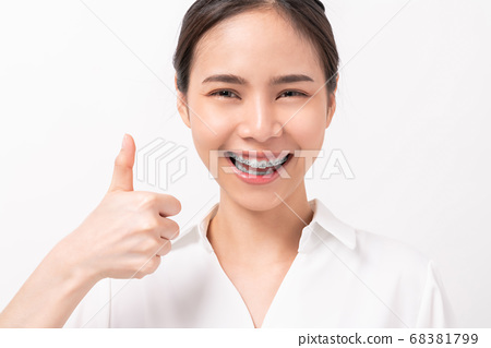 Asian woman and showing thumbs up or like and face of braces on teeth, Orthodontic Treatment. 68381799