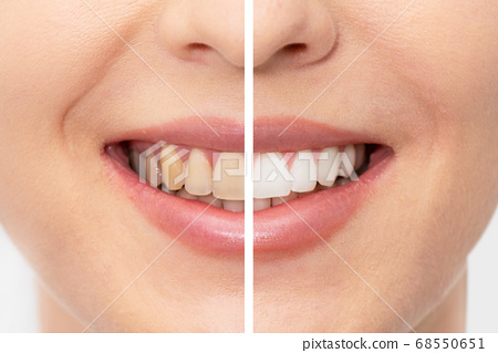 Teeth before and after whitening 68550651