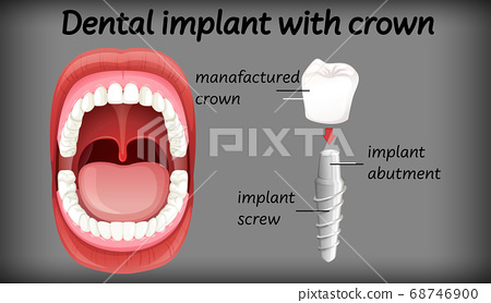 Dental implant with crown 68746900