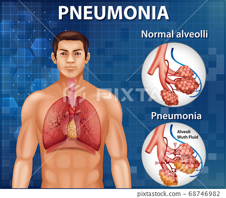 Comparison of healthy alveoli and Pneumonia 68746982