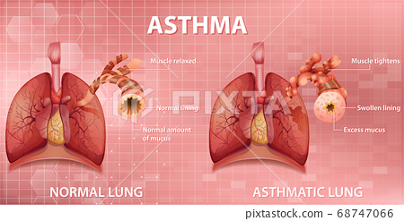Comparison of healthy lung and Asthmatic lung 68747066
