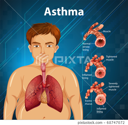 Human anatomy Asthma diagram 68747072