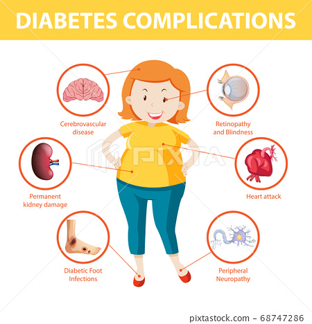 Diabetes complications information infographic 68747286