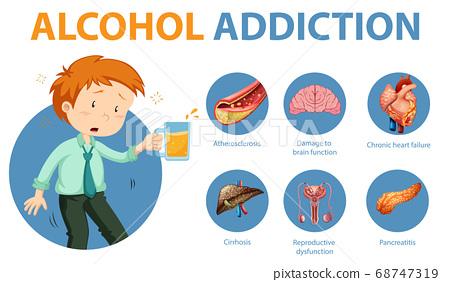 Alcohol addiction or alcoholism information 68747319