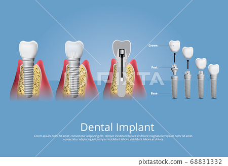 Human teeth and Dental implant Vector Illustration 68831332