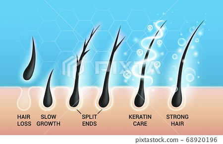 Different hair problems and deep salon treatment vector illustrations set, macro view of balding scalp skin and follicles 68920196