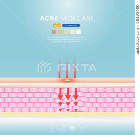 acne skin spot pimple problem vector design. 69195480