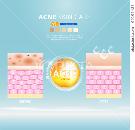 acne skin spot pimple problem vector design. 69195488