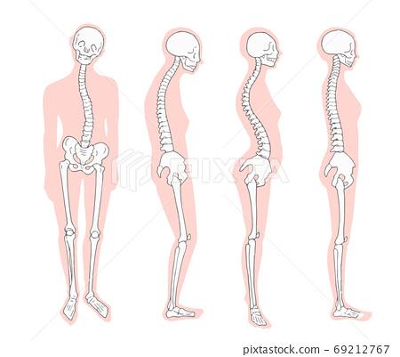 姿勢姿勢不正確的骨架和輪廓 69212767
