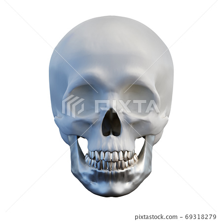human anatomical skull with metal lower jaw and teeth on isolated white background, jaw implant concept, front view, 3d render 69318279