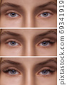 Eyelash Extension. Comparison of female eyes before and after. 69341919
