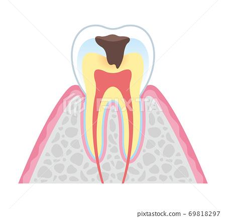 箍牙 牙齒 齒輪 69818297