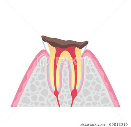 箍牙 牙齒 齒輪 69818310