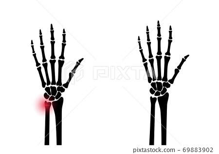 Fracture x ray concept 69883902