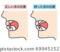 正確的舌頭位置錯誤的舌頭位置 69945152