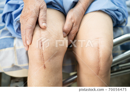 Asian senior or elderly old lady woman patient show her scars surgical total knee joint replacement Suture wound surgery arthroplasty on bed in nursing hospital ward, healthy strong medical concept. 70056475