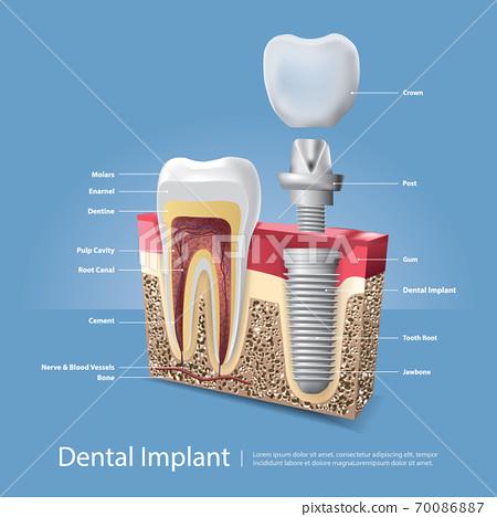 Human teeth and Dental implant Vector Illustration 70086887