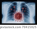 Coronavirus disease COVID-19 virus infection in human lungs 70415025