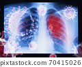 Coronavirus disease COVID-19 virus infection in human lungs 70415026