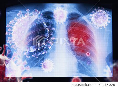 Coronavirus disease COVID-19 virus infection in human lungs 70415026