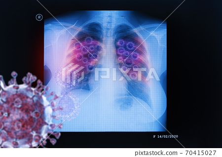 Coronavirus disease COVID-19 virus infection in human lungs 70415027