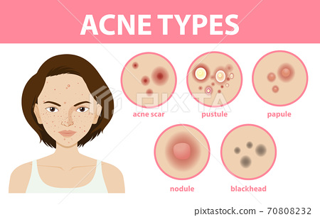 Types of acne on the skin or pimples 70808232