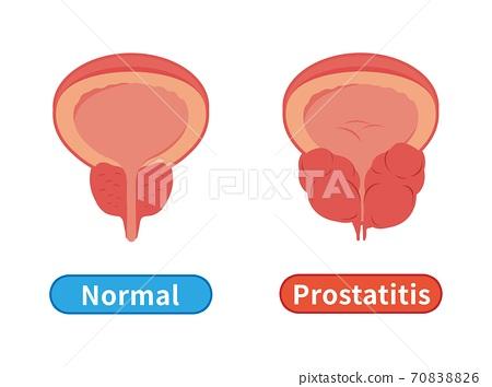 男性健康和不健康的前列腺,前列腺肥大和炎症在白色背景中 70838826