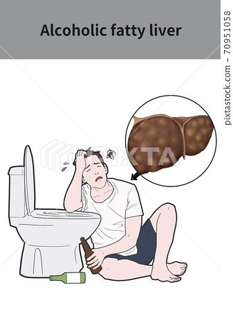 脂肪肝宿醉圖 70951058