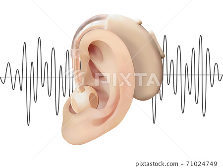 Digital hearing aid behind the ear, on the background of sound wave diagram. Treatment and prosthetics of hearing loss in otolaryngology. Realistic vector illustration. Medicine and health. 71024749