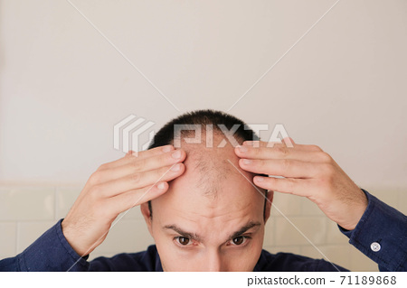 Young man looking at mirror worry about balding. 71189868