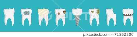 Set of teeth, healthy and witn different dental problems, stock vector illustration. 71562200