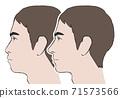低頭和前嘴的男性比較型 71573566