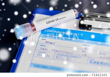 close up of beaker with coronavirus blood test 71922101