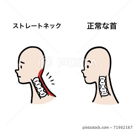直脖子和正常脖子的比較插圖 71982167