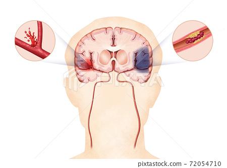 腦和腦血管疾病的解剖圖 72054710