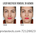 Wax, laser hair removal of the mustache for women. Facial hair removal 72126623