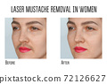 Wax, laser hair removal of the mustache for women 72126627