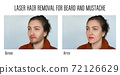 laser hair removal for beard and mustache 72126629