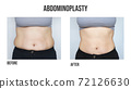 Abdominoplasty, tummy tuck plastic surgery in woman. Front view. Abdominal changes after pregnancy 72126630