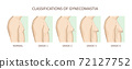 Classification of gynecomastia. Enlargement of the male breast 72127752
