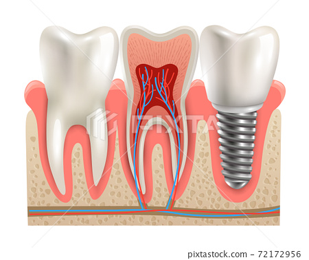 Dental Implants Anatomy Closeup Model 72172956