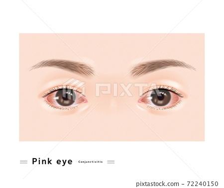 結膜炎眼充血症狀女性面部眼充血紅色過敏眼科病例圖 72240150