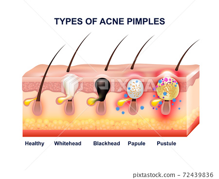 Skin Acne Anatomy Composition 72439836